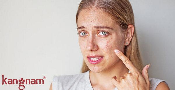 Nhiều người đang phải đối mặt với mụn như một căn bệnh về da