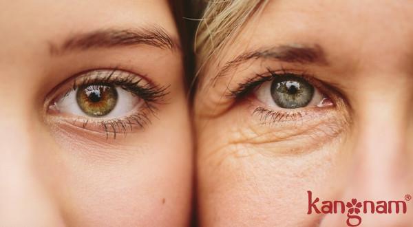 """""""Mách bạn"""" nguyên nhân gây lão hóa da và cách bảo vệ da không bị lão hóa sớm"""