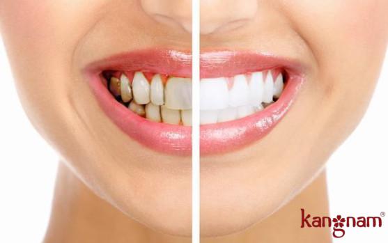 cách làm trắng răng tại nhà an toàn