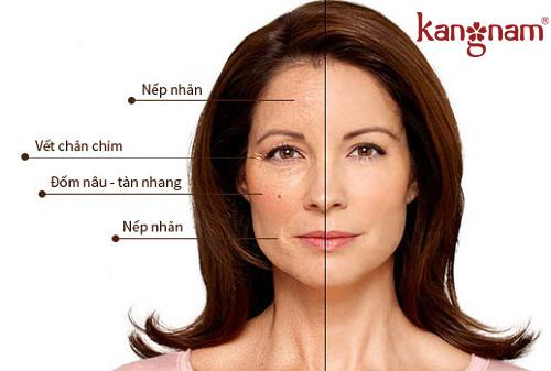 Da bị thiếu collagen.