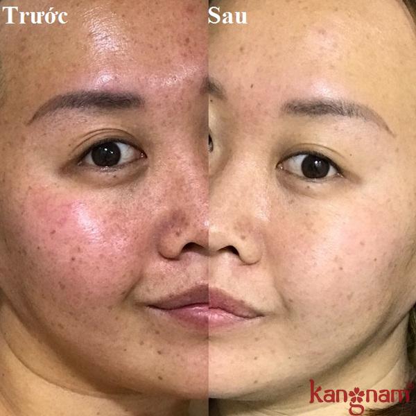 review-serum-giam-nam-ngan-ngua-lao-hoa-murad-6
