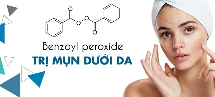 Benzol Peroxide giúp trị mụn